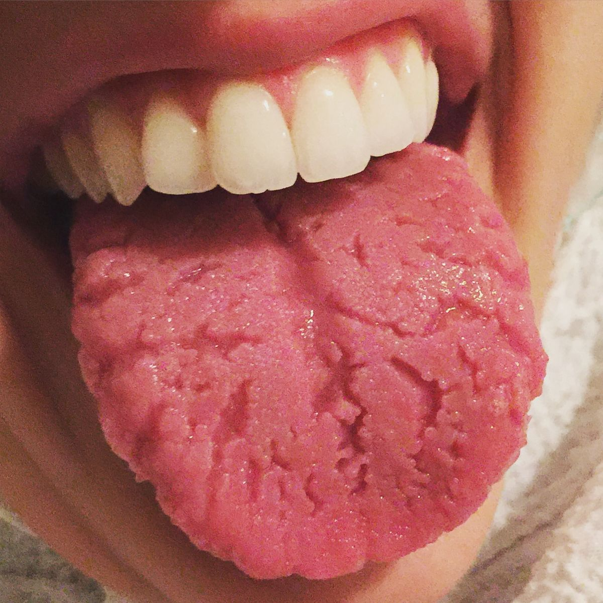 wart on my tongue