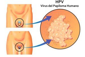 hpv virus en mujeres