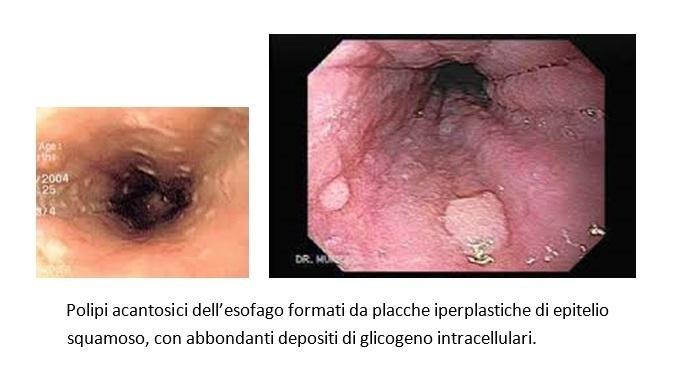 papilloma squamoso esofago