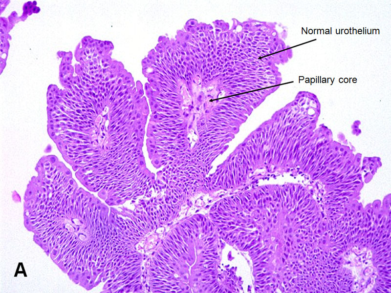 papilloma urothelial histopathology high risk hpv and rectal cancer