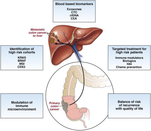 rectal cancer with liver metastases
