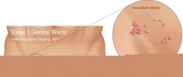 hpv related warts cancerul colului uterin