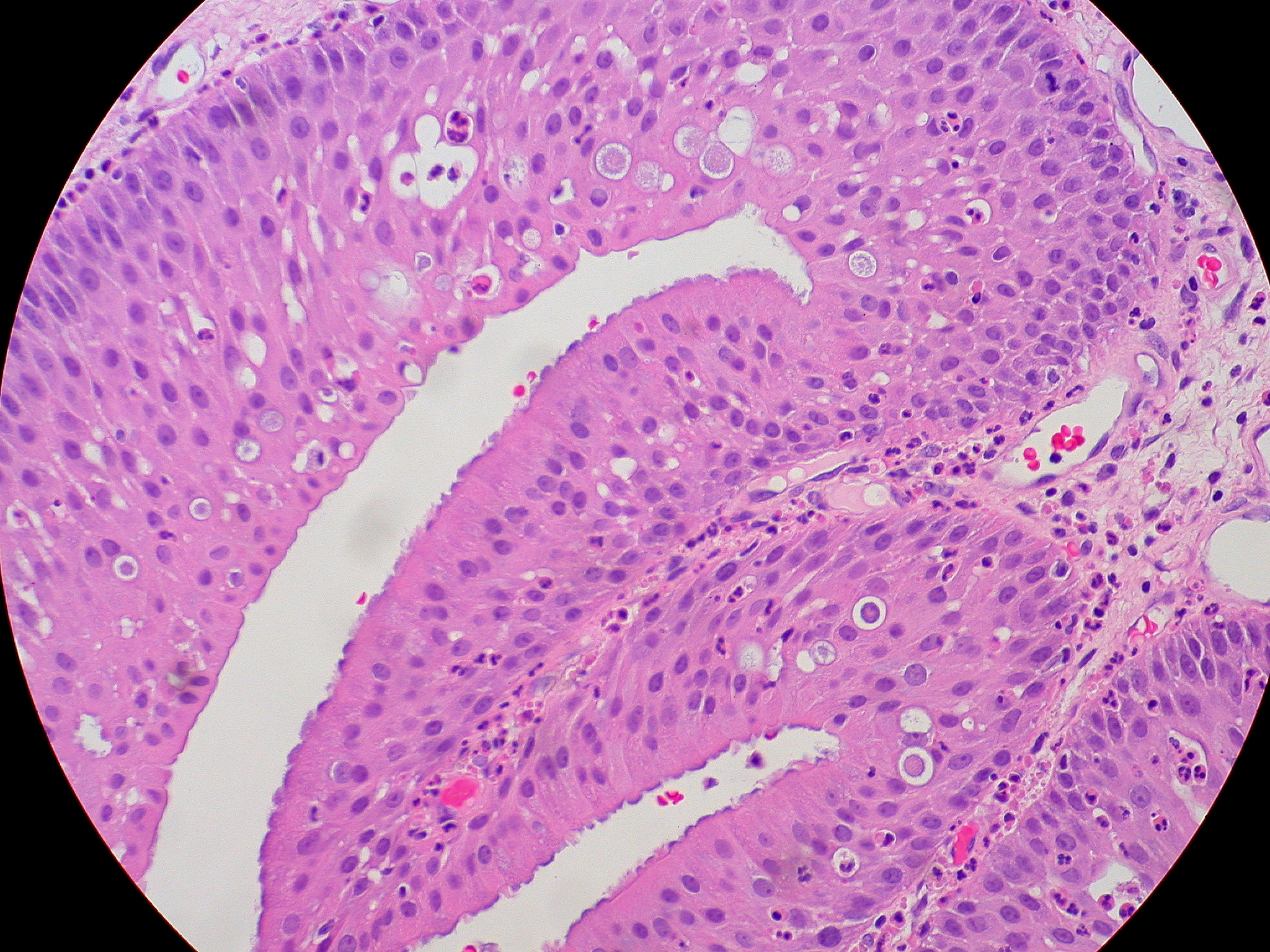 oncocytic inverted papilloma paraziti helicobacter pylori
