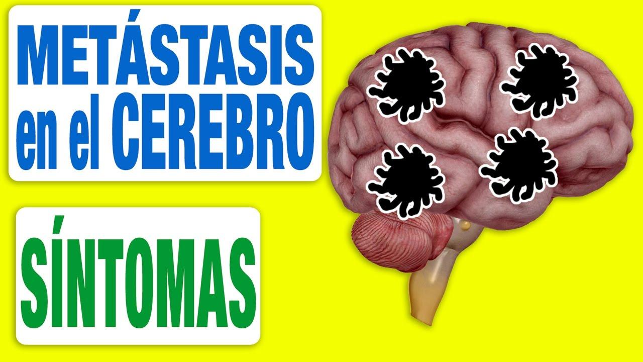 neuroendocrine cancer tests cancer cerebral pronostico