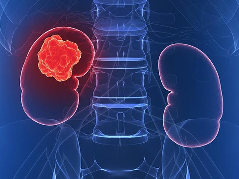 cancerul renal simptome test papilloma virus in gravidanza