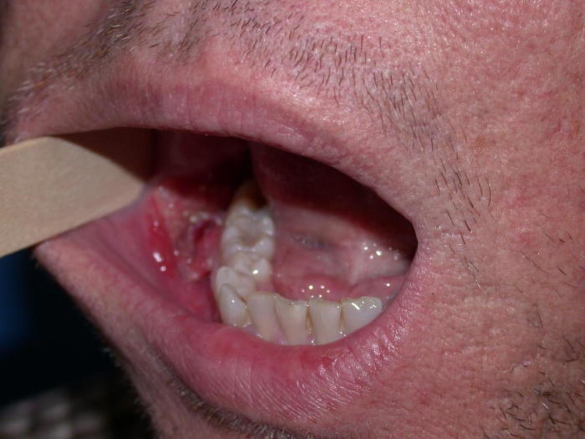 hpv through tongue
