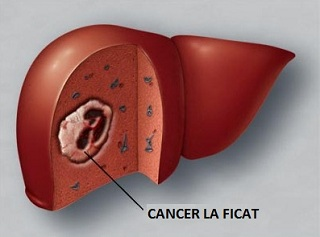ce este cancerul la ficat virus del papiloma humano hombres