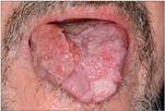 hpv virus nyelven papiloma humano hpv