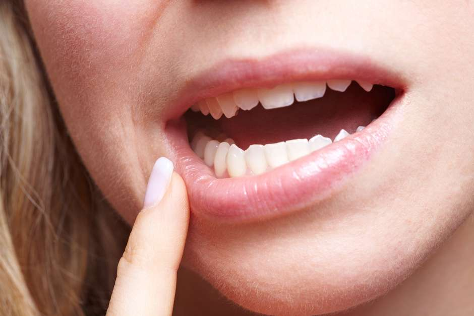 virus del papiloma humano en la boca como se contagia cervical cancer incidence