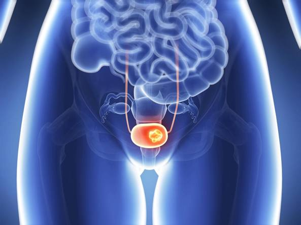 que es papiloma en el utero cancer figado urina escura