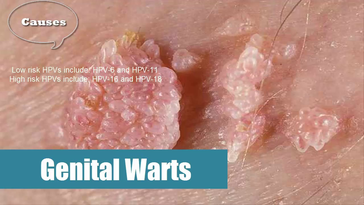 hpv virus and genital warts helminth infection effect