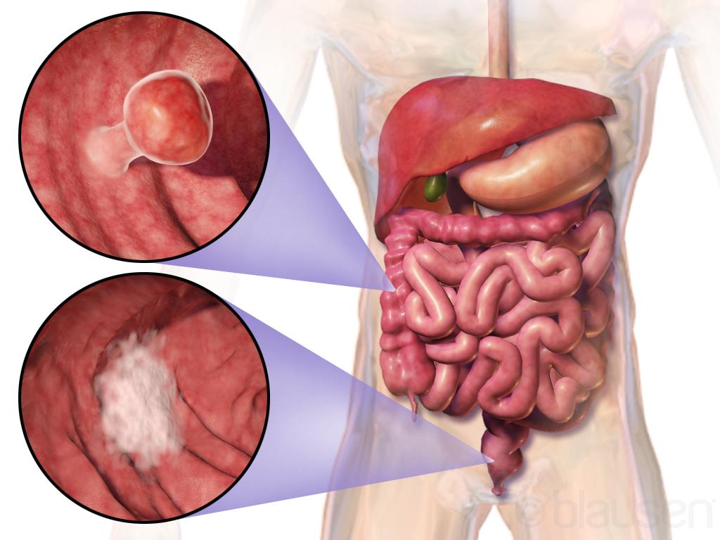 cancer colon homme symptome papiloma humano es un virus