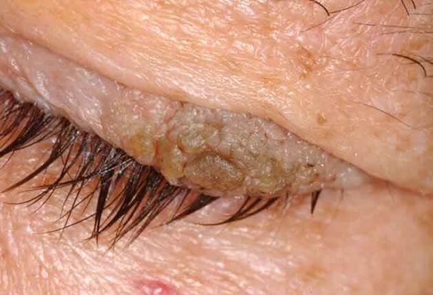 papilloma eyelid removal cancer de prostata no brasil