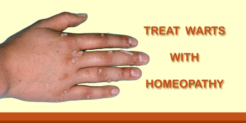 warts homeopathic cure mebendazol en oxiuros