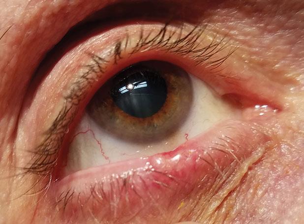 hpv under eyelid meniu de detoxifiere