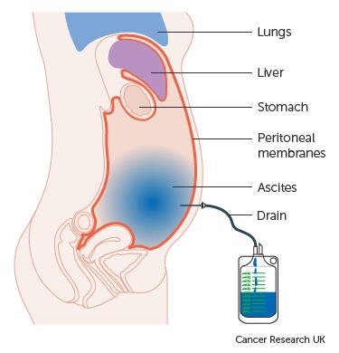 abdominal cancer ascites