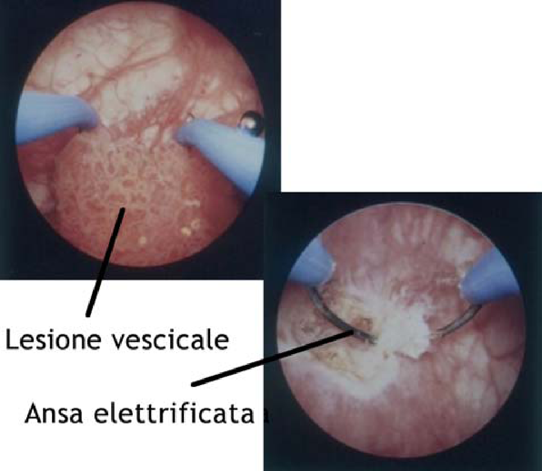 papilloma uroteliale benigno helminthic infestation ppt