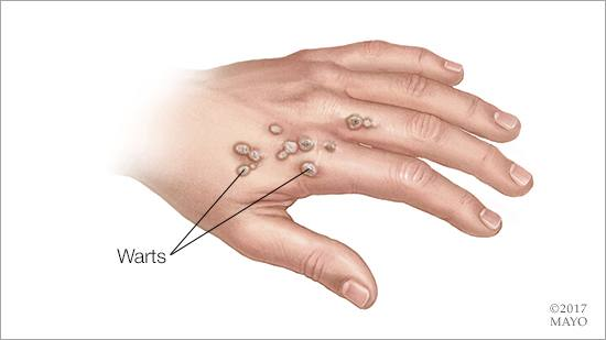 warts on my hands are spreading