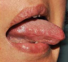 warts pregnancy symptom parazitii pabibabum