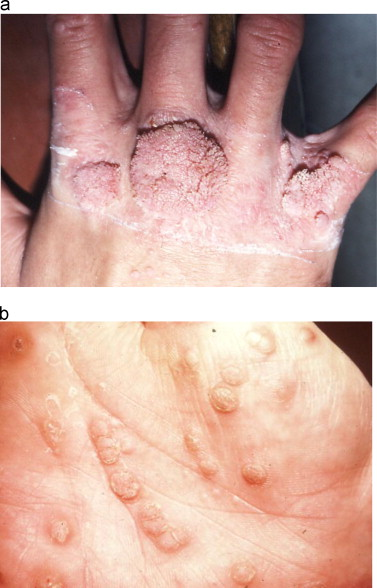 human papillomavirus induced warts papillomatosis bronchitis