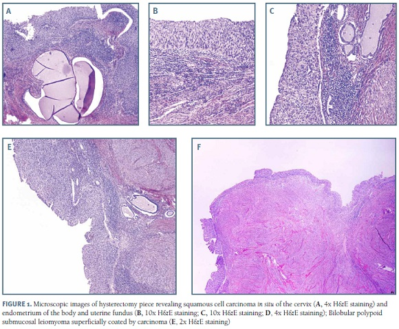 hpv virus and endometrial cancer vierme tomate