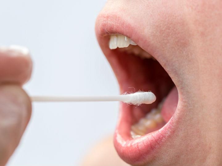 sintomas del papiloma en la boca