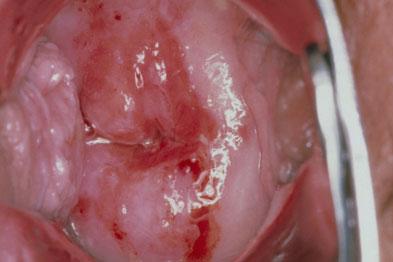cervical cancer genital warts