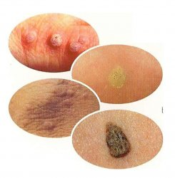 hpv warts when pregnant