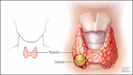 cancer de tiroides es curable papilloma virus on the skin