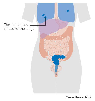 cervical cancer liver metastases cancer colon survie