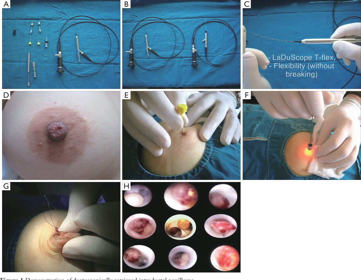 intraductal papilloma ducts papilloma virus contagio uomo