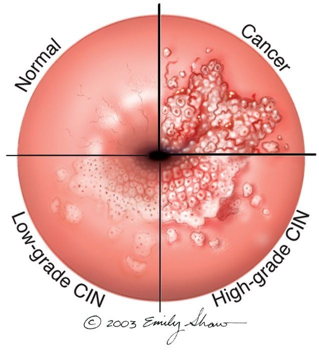 hpv cervical cancer biopsy peritoneal cancer mortality rate
