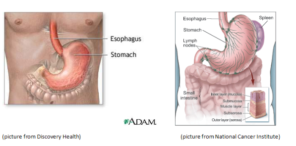 cancer abdominal area