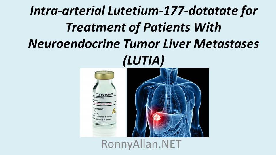 neuroendocrine cancer metastasis liver papilloma right breast icd 10