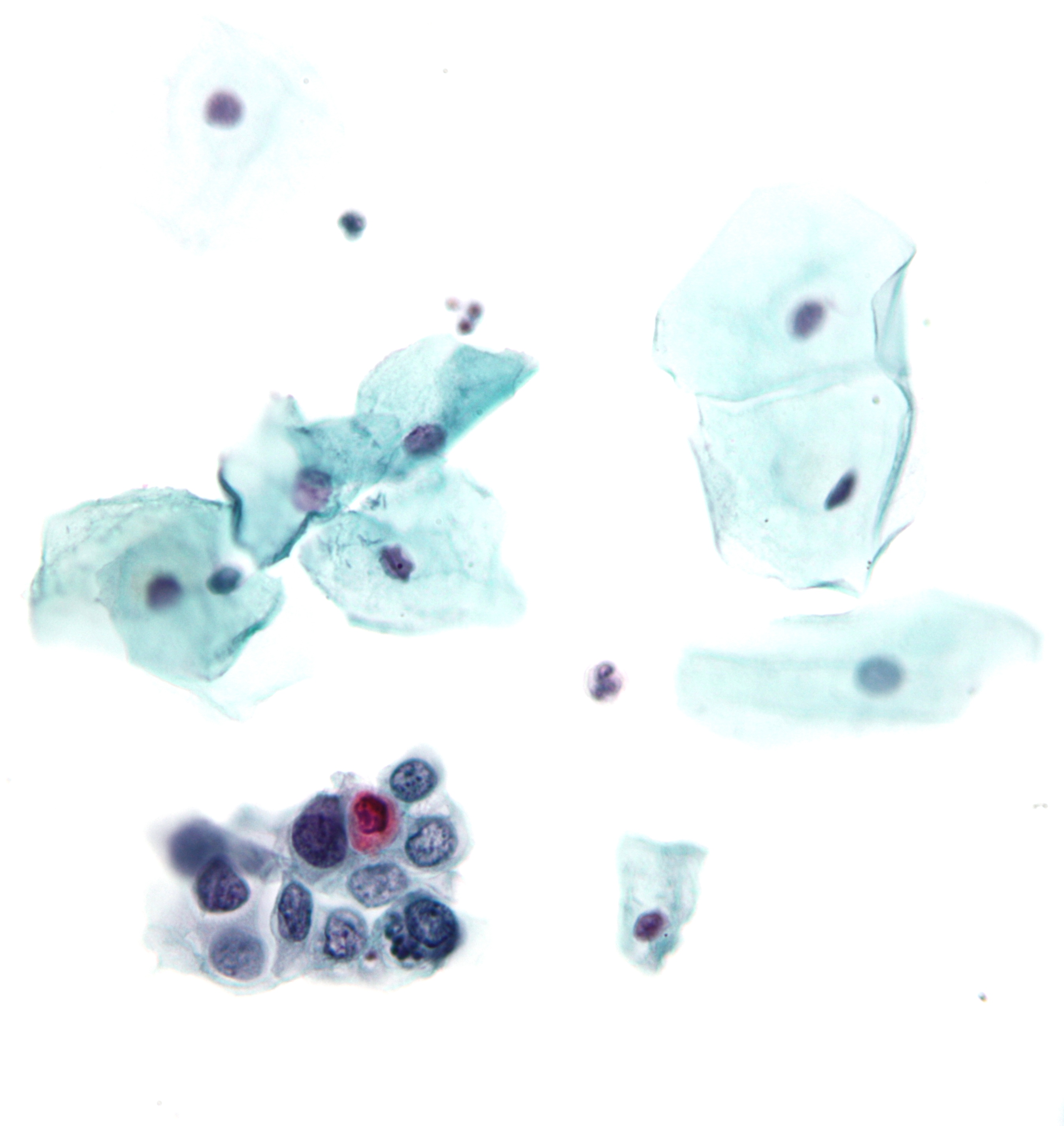 precancerous papilloma