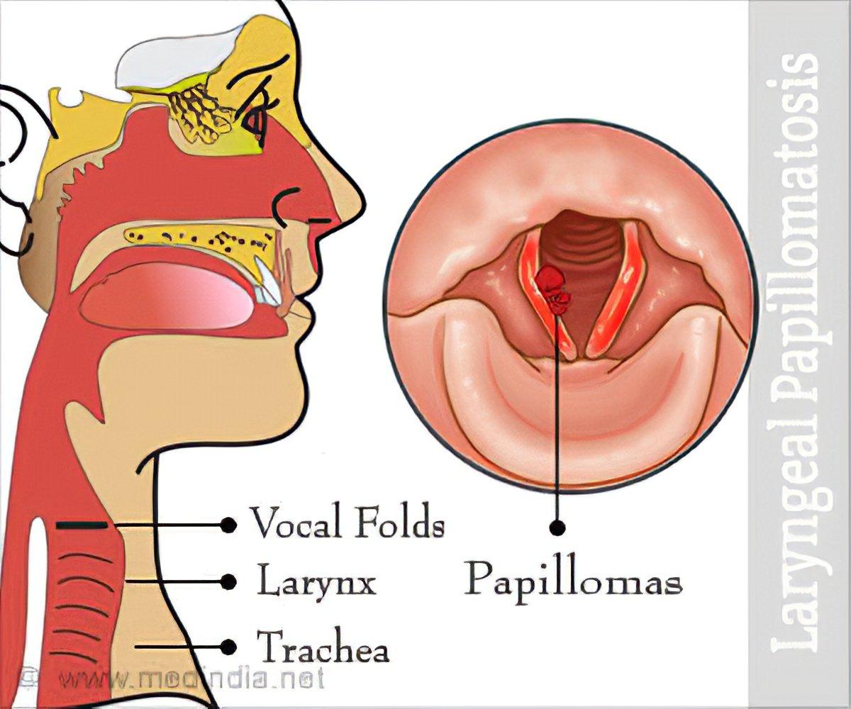 papillomatosis urinary tract papilloma virus test in farmacia
