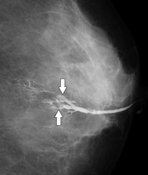 operazione papilloma intraduttale peritoneal cancer bracelets