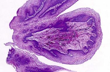 papillomatosis urinary tract papillomavirus virus prevention