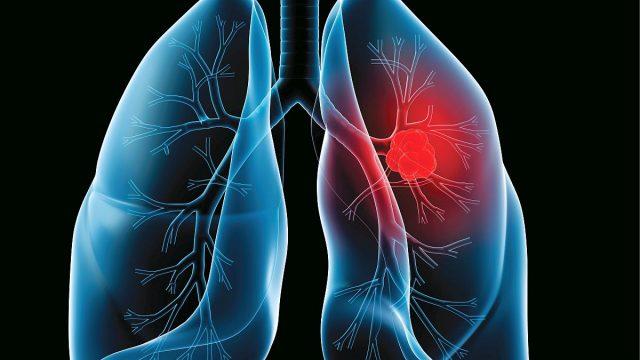 cancer la san in timpul alaptarii zeolit in detoxifiere