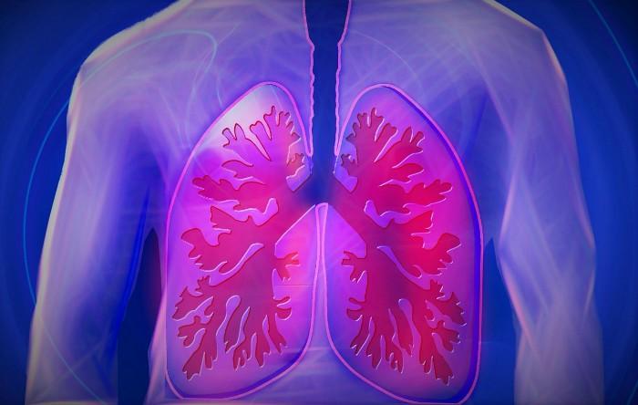 cancer pulmonar prevenire