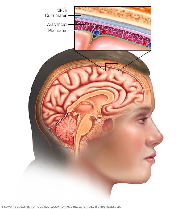 que es brain cancer cancer colon pronostico