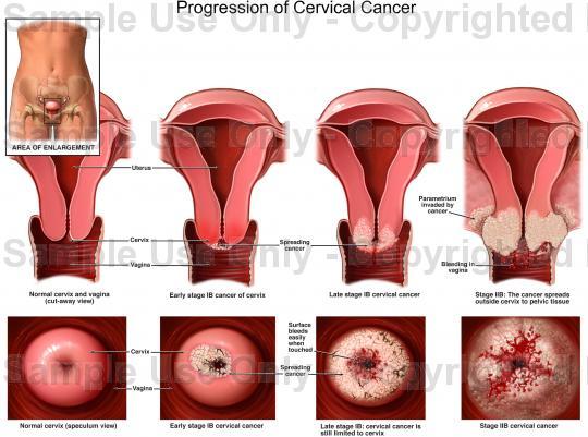 hpv cervical cancer biopsy vestibular papillomatosis during pregnancy
