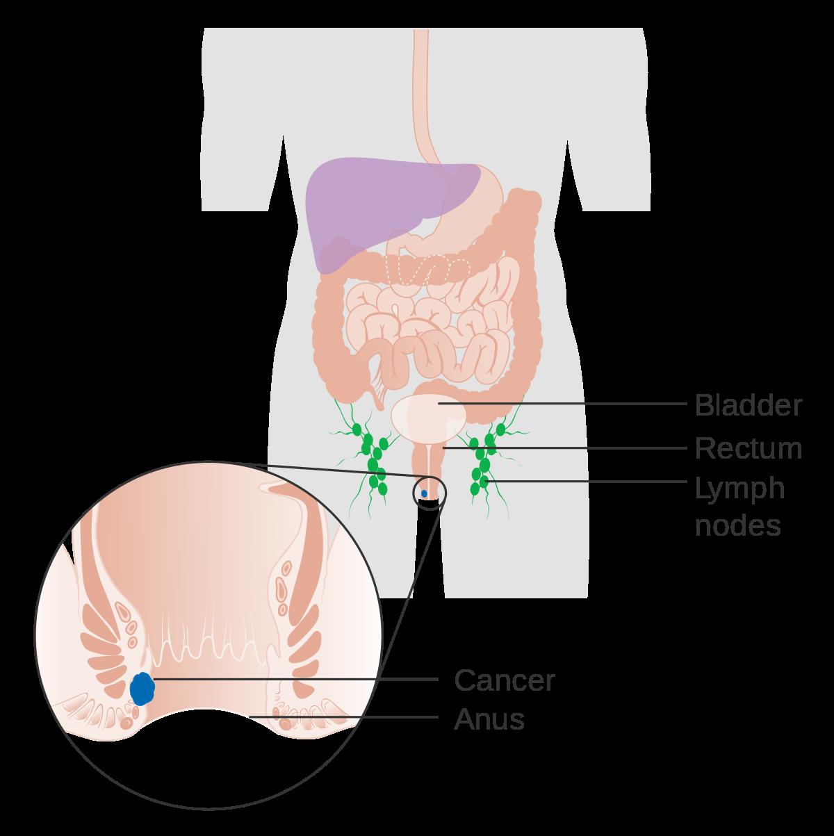 anorectal papilloma