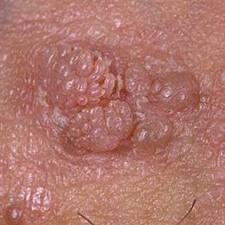 dysbiosis lab test why do breast papillomas need to be removed