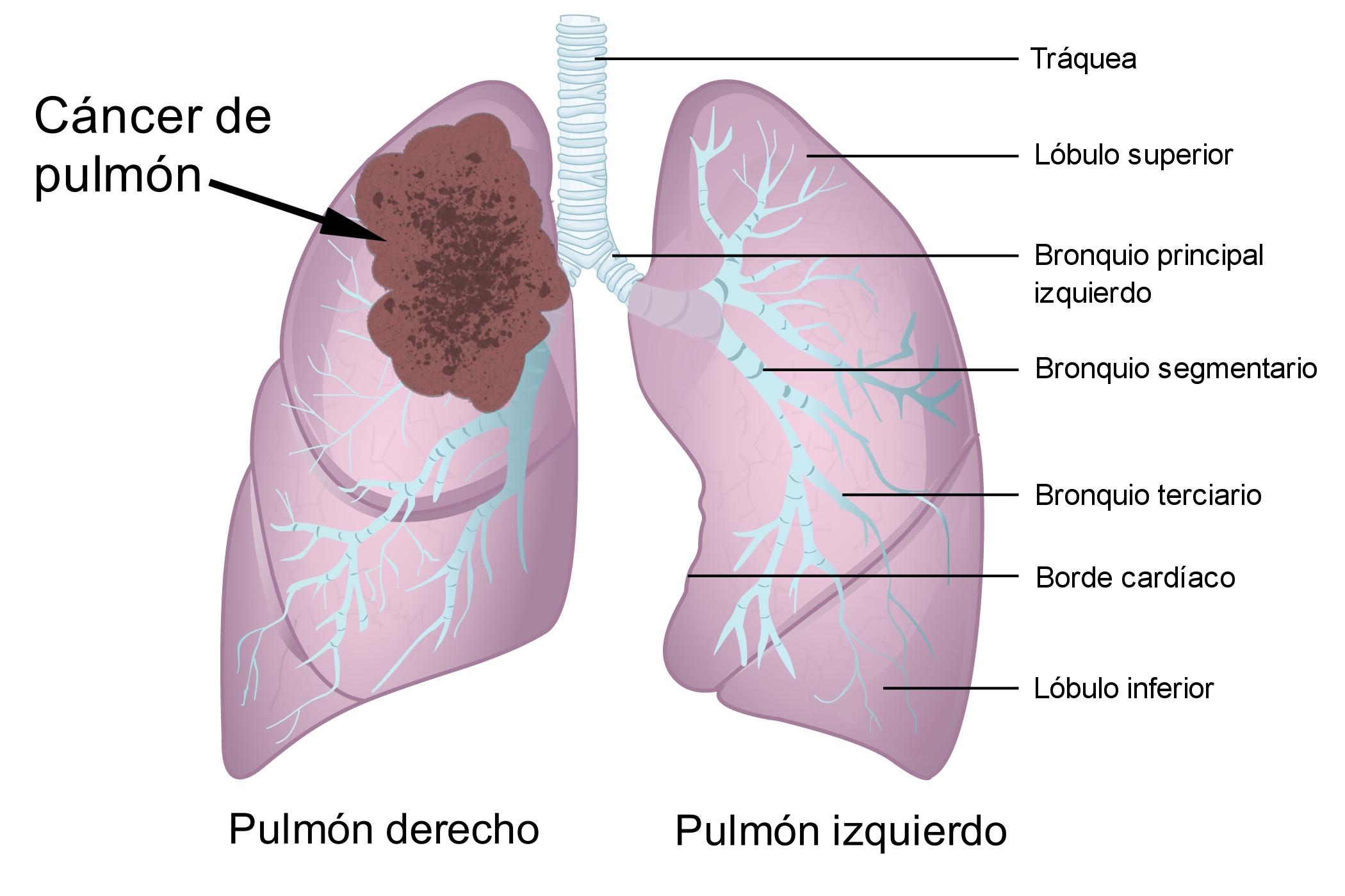 cancer pulmonar y laringe