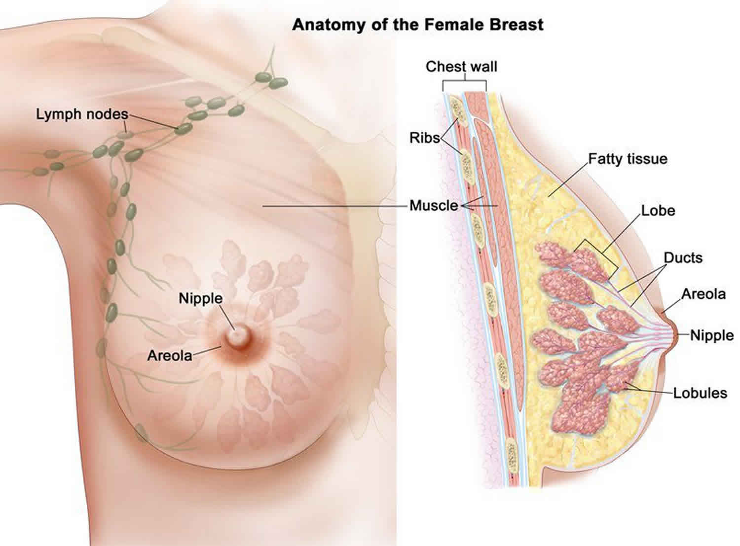 how to remove a breast papilloma