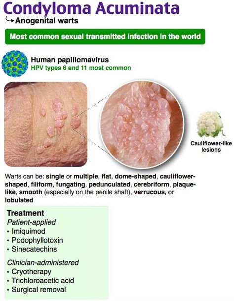condyloma acuminatum hpv breast intraductal papilloma with atypia
