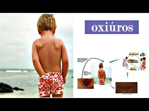oxiuros como curar cancer orofaringian evolutie