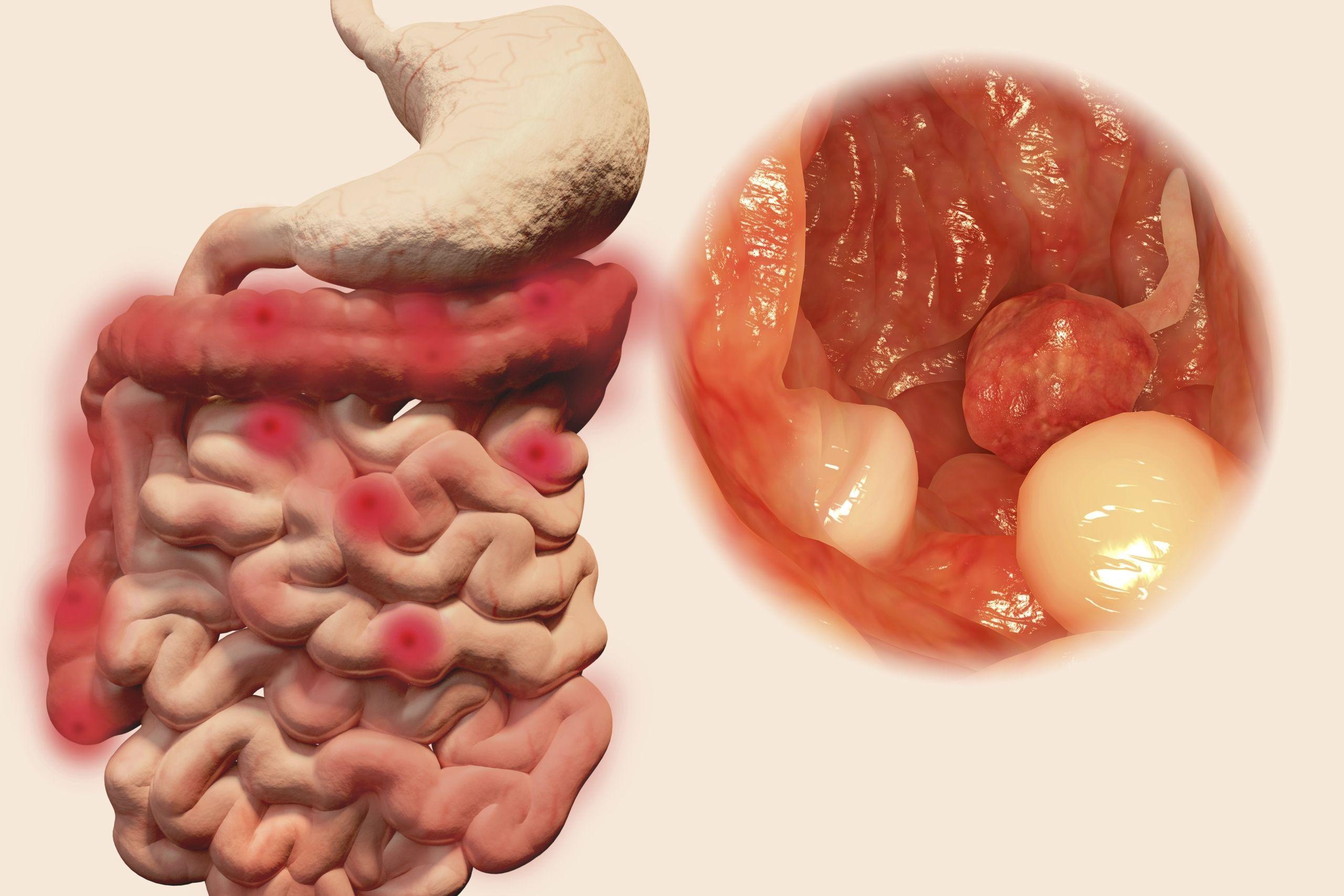 cancer colon droit pronostic cura para oxiuros