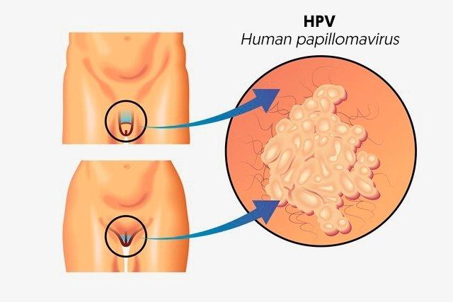 el virus hpv papiloma